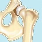 Santé chiens:la dysplasie de la hanche